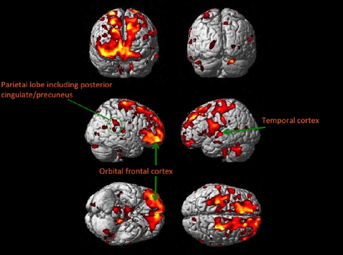 MRI brains